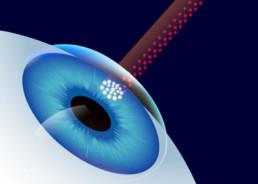 Laserabtragung bei Femto-LASIK